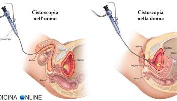 îndepărtarea verucilor genitale pe uretra)