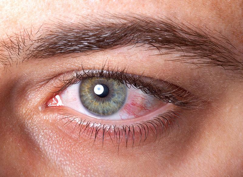 paraziti ochi