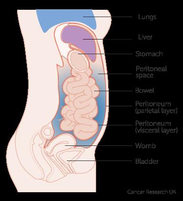 îndepărtați condiloamele din uretra