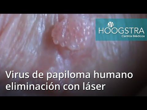 Puteți elimina singur papiloma. HPV (Human Papilloma Virus)