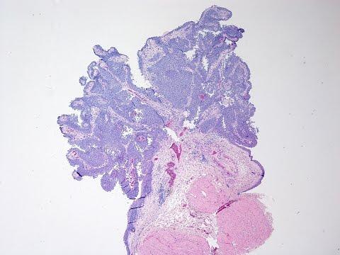 tratamentul cu paraziti nsp morfologia ouălor forteiloidoză