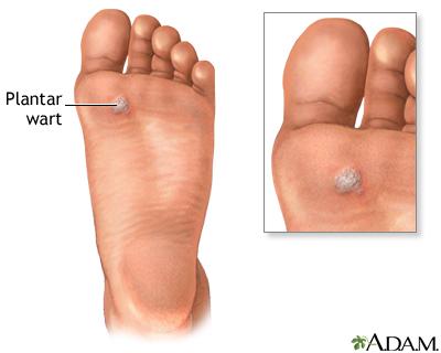 warts foot hurt simptomele viermilor în anul copilului