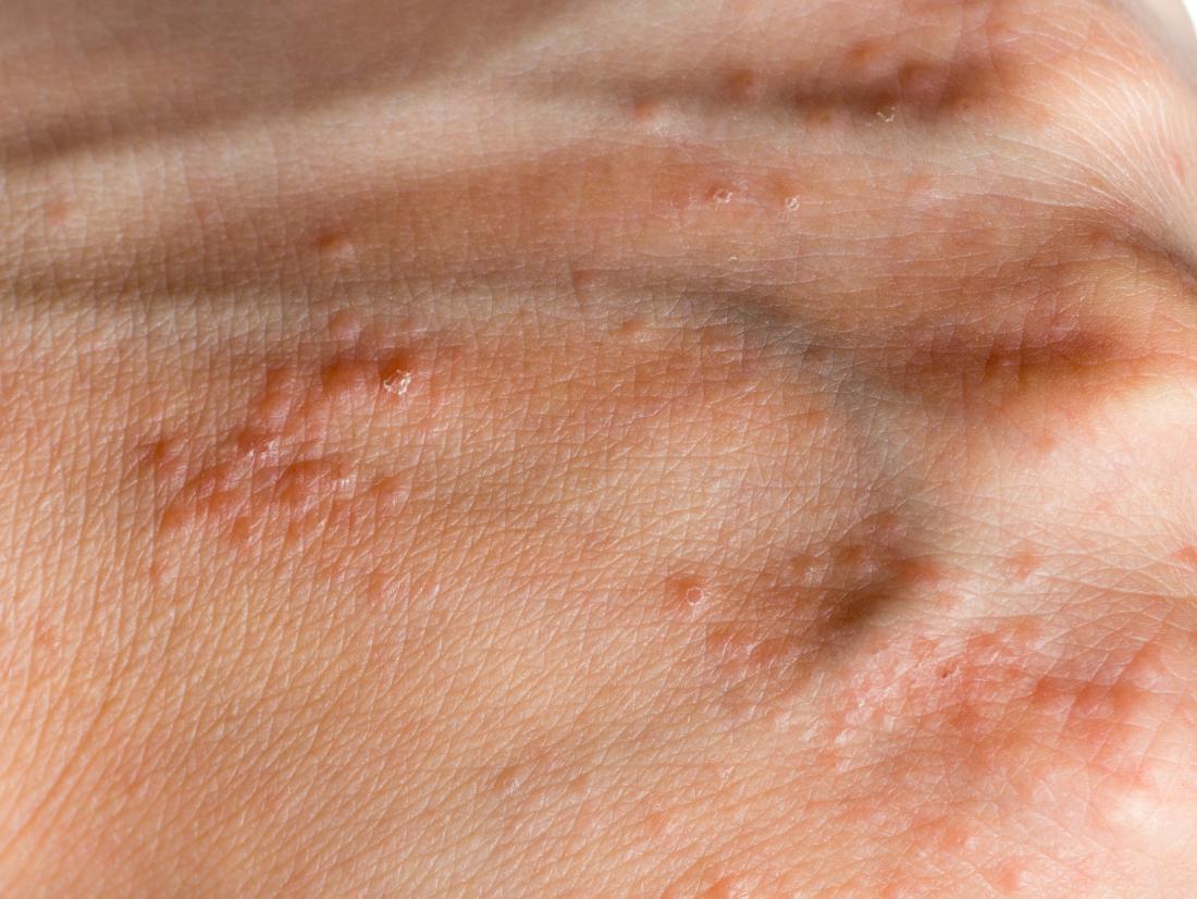 warts on hands eczema