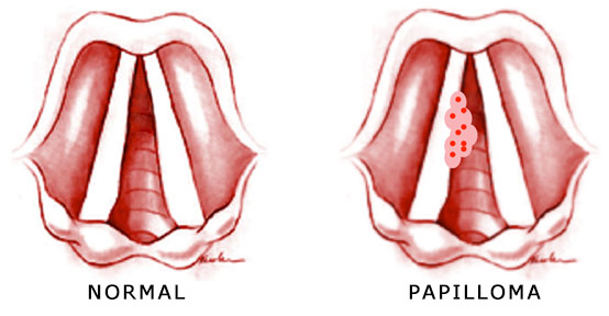 what causes papillomas in the throat